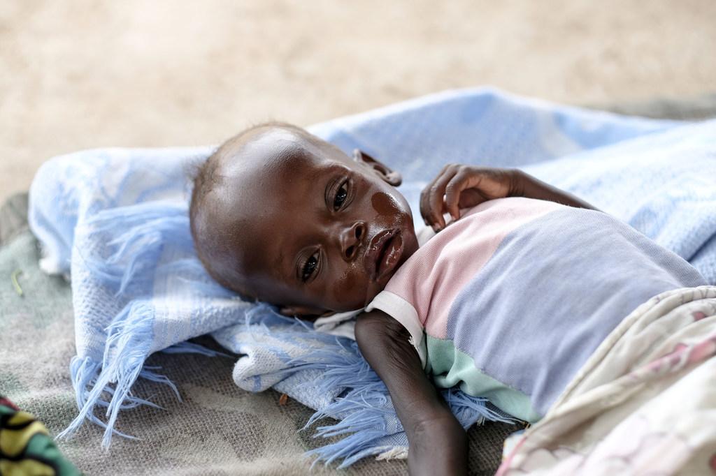 Bébé de 8 mois souffrant de malnutrition à Juba, Soudan du Sud
